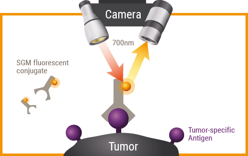Immunophotodetection tumor5