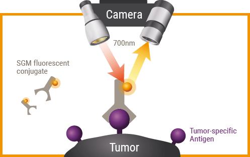 Immunophotodetection tumor5